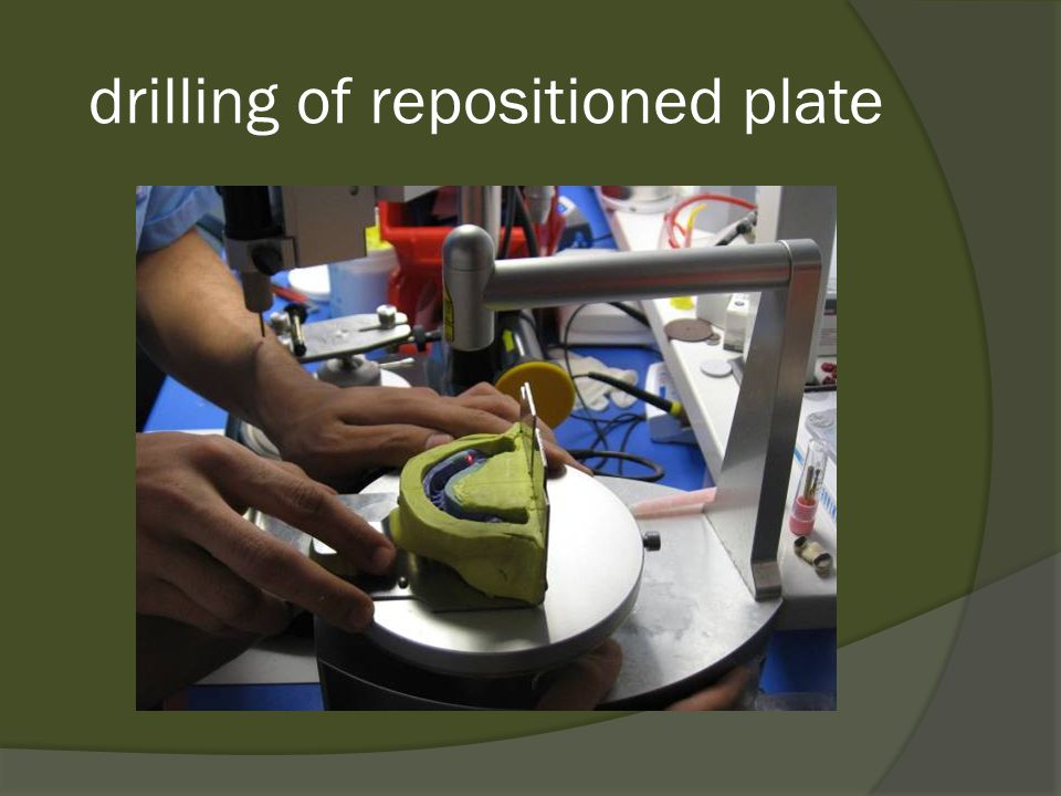 drilling of repositioned plate