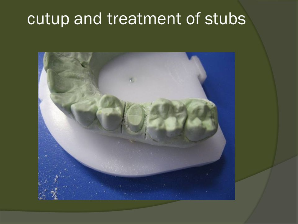 cutup and treatment of stubs