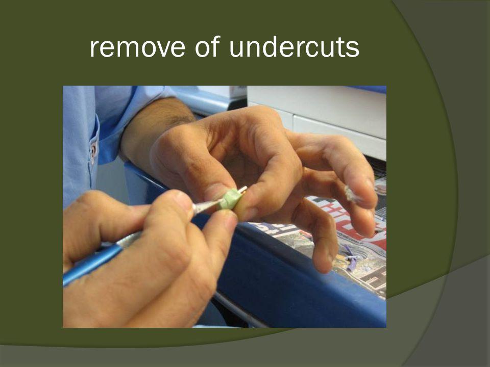 remove of undercuts