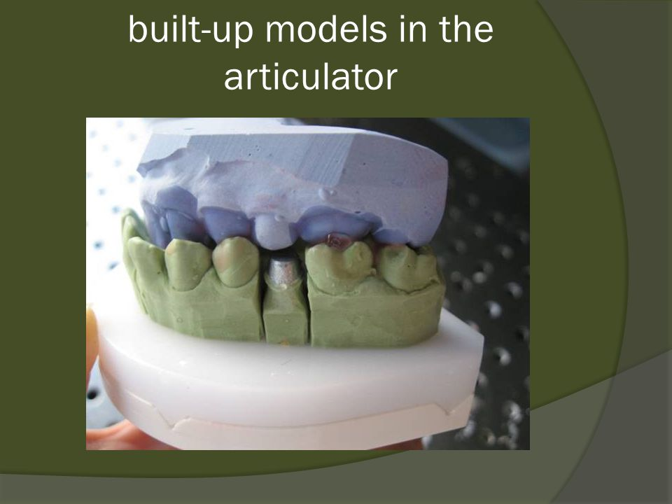 built-up models in the articulator