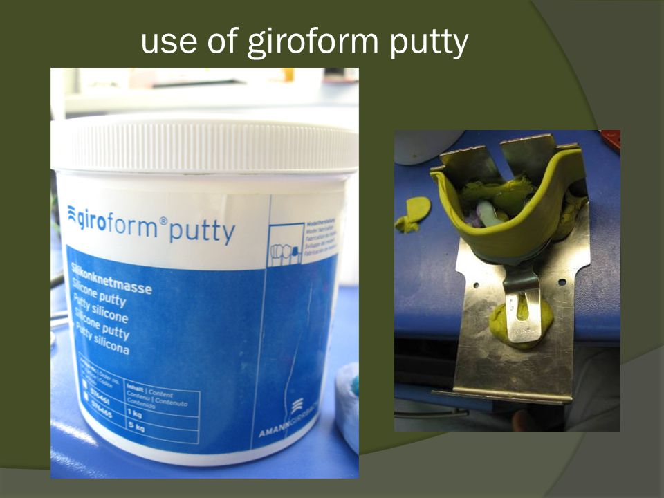 use of giroform putty
