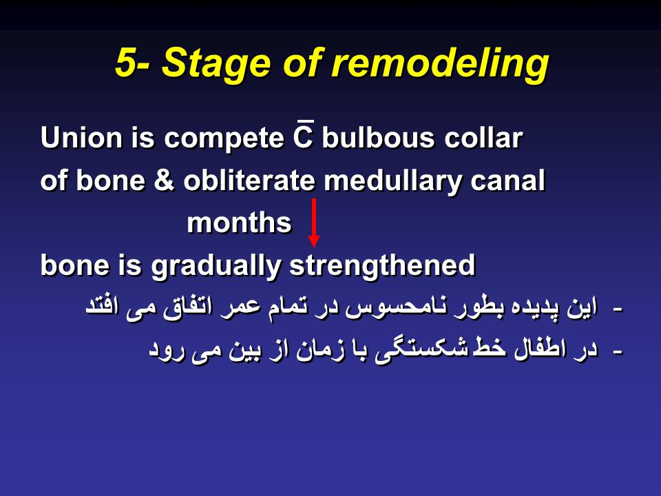 5- Stage of remodeling Union is compete C bulbous collar of bone & obliterate medullary canal months bone is gradually strengthened -این پدیده بطور نا