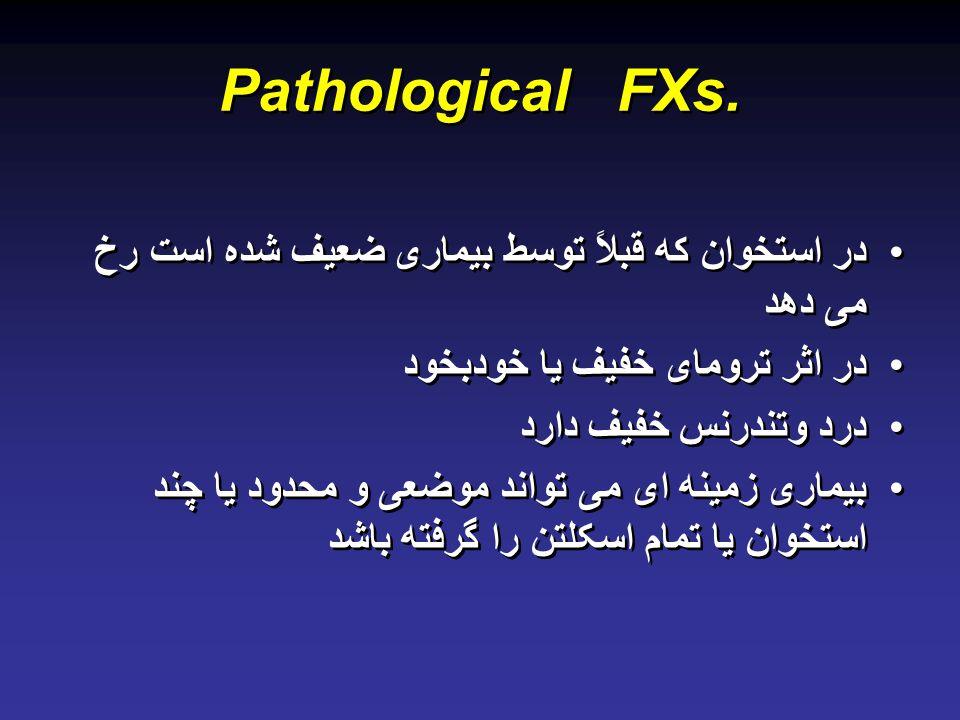 Pathological FXs.
