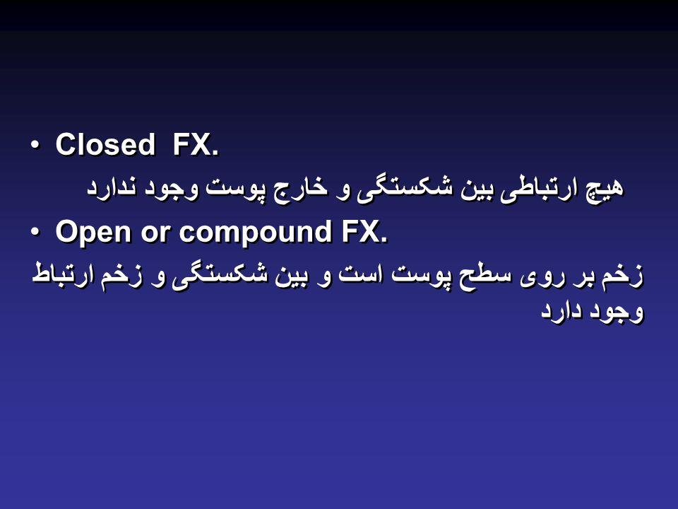 Closed FX.هیچ ارتباطی بین شکستگی و خارج پوست وجود ندارد Open or compound FX.