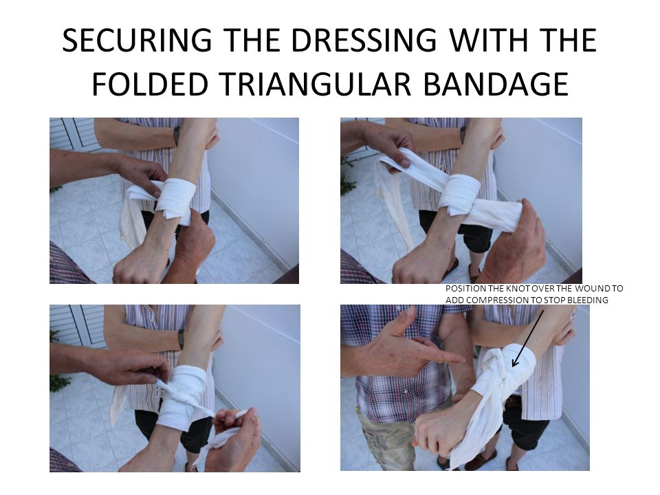 SECURING THE DRESSING WITH THE FOLDED TRIANGULAR BANDAGE POSITION THE KNOT OVER THE WOUND TO ADD COMPRESSION TO STOP BLEEDING