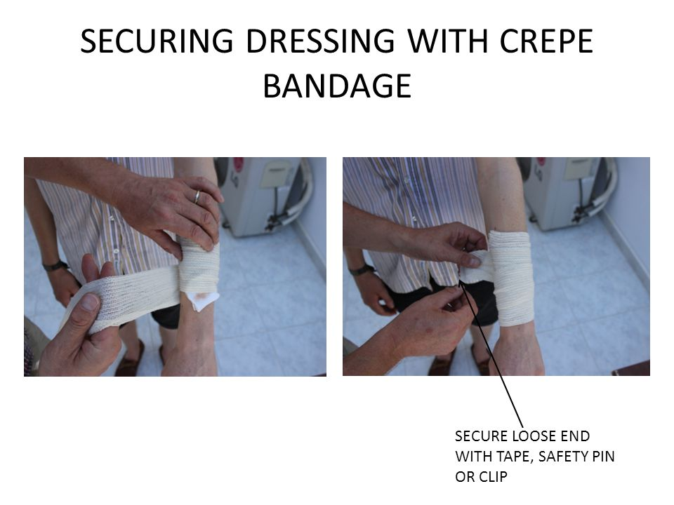 SECURING DRESSING WITH CREPE BANDAGE SECURE LOOSE END WITH TAPE, SAFETY PIN OR CLIP