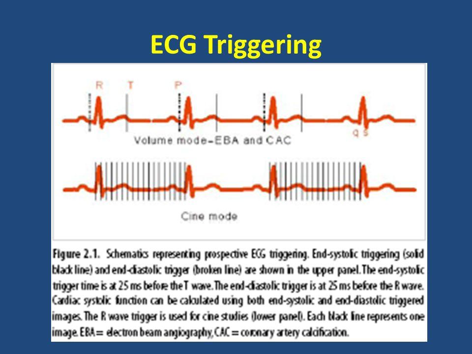 ECG Triggering