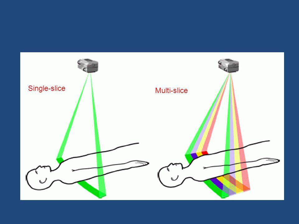 Single-slice Multi-slice