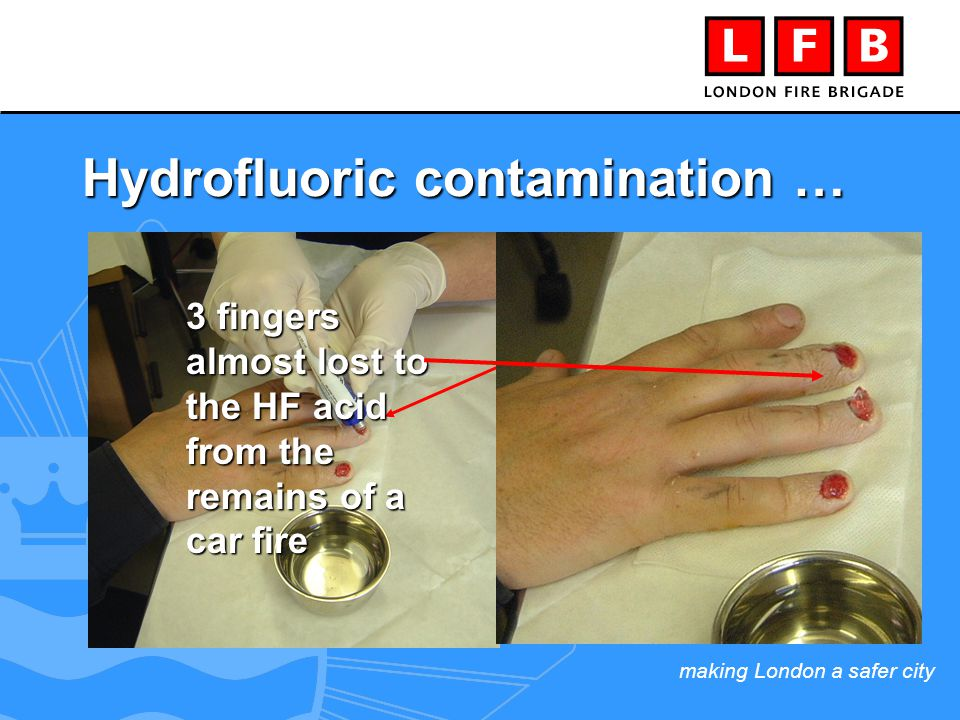 making London a safer city Hydrofluoric contamination … Calcium gluconate gel injected under removed finger nails 3 fingers almost lost to the HF acid from the remains of a car fire