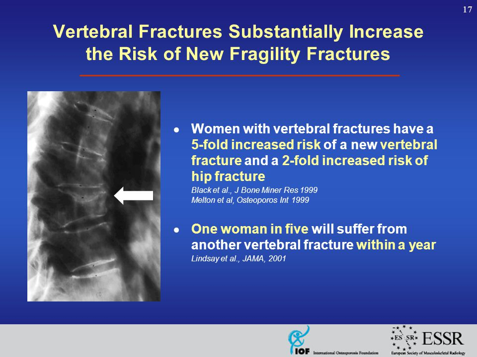 17 Vertebral Fractures Substantially Increase the Risk of New Fragility Fractures  Women with vertebral fractures have a 5-fold increased risk of a new vertebral fracture and a 2-fold increased risk of hip fracture Black et al., J Bone Miner Res 1999 Melton et al, Osteoporos Int 1999  One woman in five will suffer from another vertebral fracture within a year Lindsay et al., JAMA, 2001