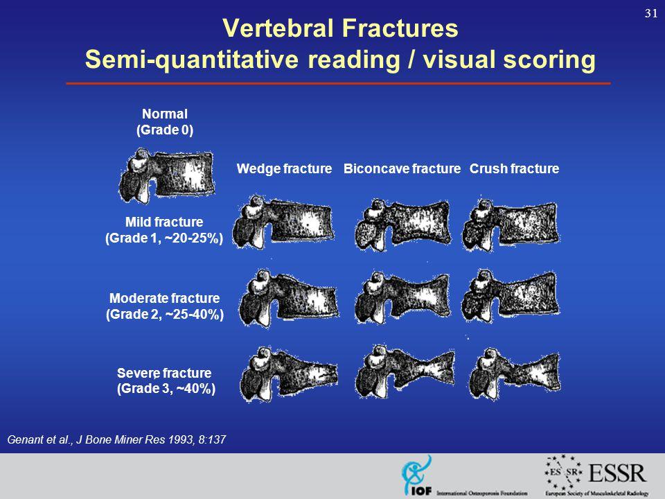 31 Vertebral Fractures Semi-quantitative reading / visual scoring Genant et al., J Bone Miner Res 1993, 8:137 Normal (Grade 0) Wedge fractureBiconcave fractureCrush fracture Mild fracture (Grade 1, ~20-25%) Moderate fracture (Grade 2, ~25-40%) Severe fracture (Grade 3, ~40%)