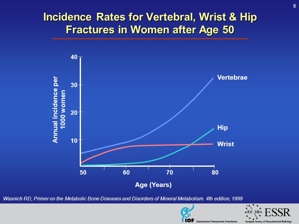 8 Incidence Rates for Vertebral, Wrist & Hip Fractures in Women after Age 50 Wasnich RD, Primer on the Metabolic Bone Diseases and Disorders of Mineral Metabolism.