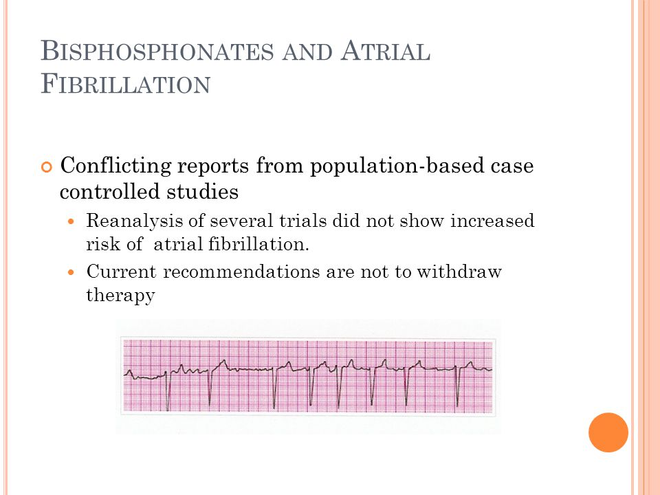 B ISPHOSPHONATES AND A TRIAL F IBRILLATION Conflicting reports from population-based case controlled studies Reanalysis of several trials did not show