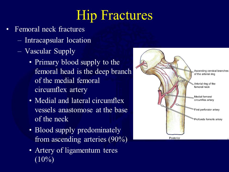 Hip Fractures Femoral neck fractures –Intracapsular location –Vascular Supply Primary blood supply to the femoral head is the deep branch of the medial femoral circumflex artery Medial and lateral circumflex vessels anastomose at the base of the neck Blood supply predominately from ascending arteries (90%) Artery of ligamentum teres (10%)