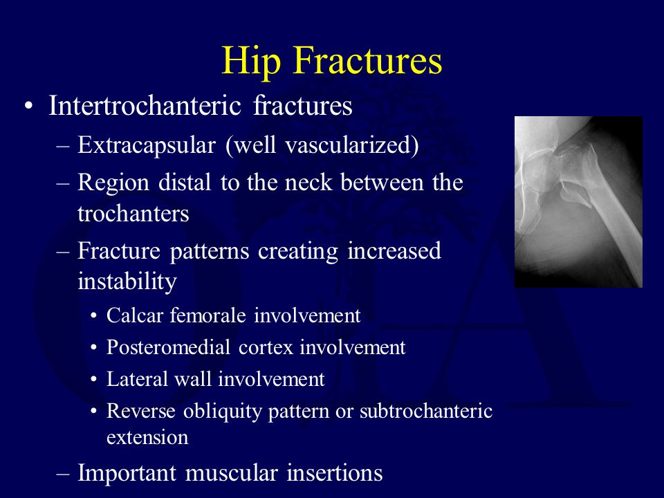 Hip Fractures Intertrochanteric fractures –Extracapsular (well vascularized) –Region distal to the neck between the trochanters –Fracture patterns creating increased instability Calcar femorale involvement Posteromedial cortex involvement Lateral wall involvement Reverse obliquity pattern or subtrochanteric extension –Important muscular insertions
