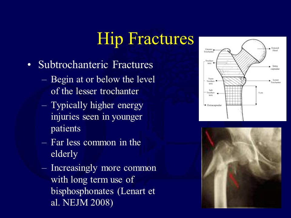 Hip Fractures Subtrochanteric Fractures –Begin at or below the level of the lesser trochanter –Typically higher energy injuries seen in younger patients –Far less common in the elderly –Increasingly more common with long term use of bisphosphonates (Lenart et al.