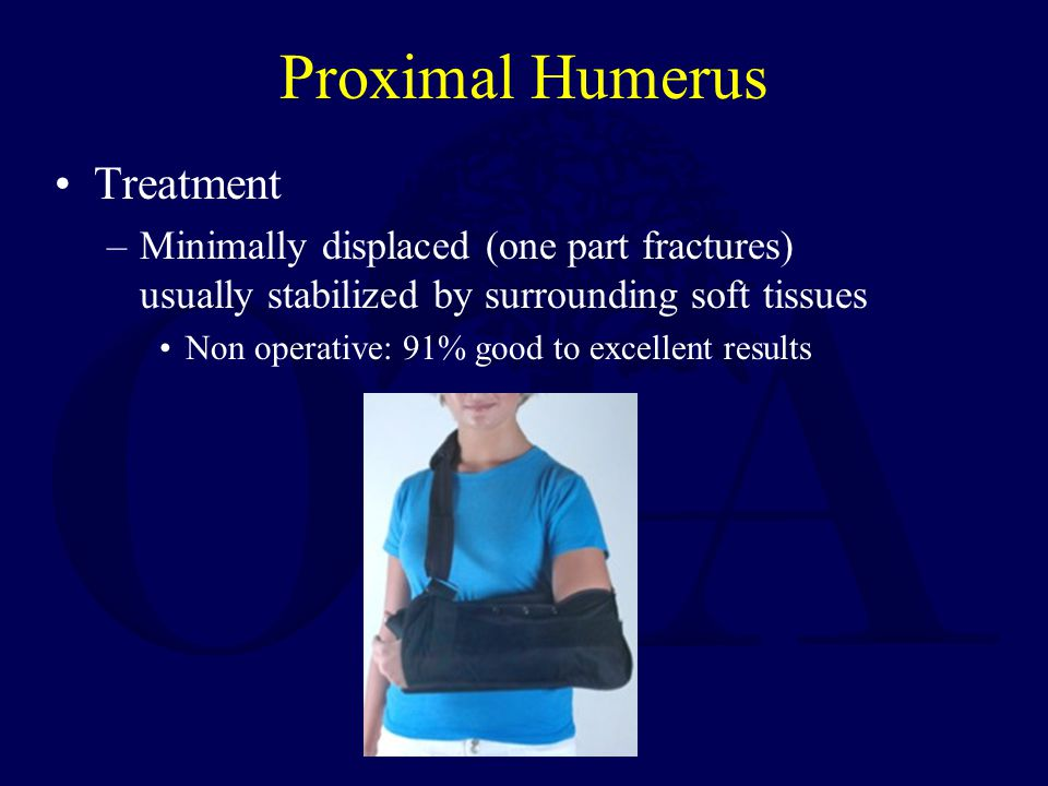Proximal Humerus Treatment –Minimally displaced (one part fractures) usually stabilized by surrounding soft tissues Non operative: 91% good to excellent results