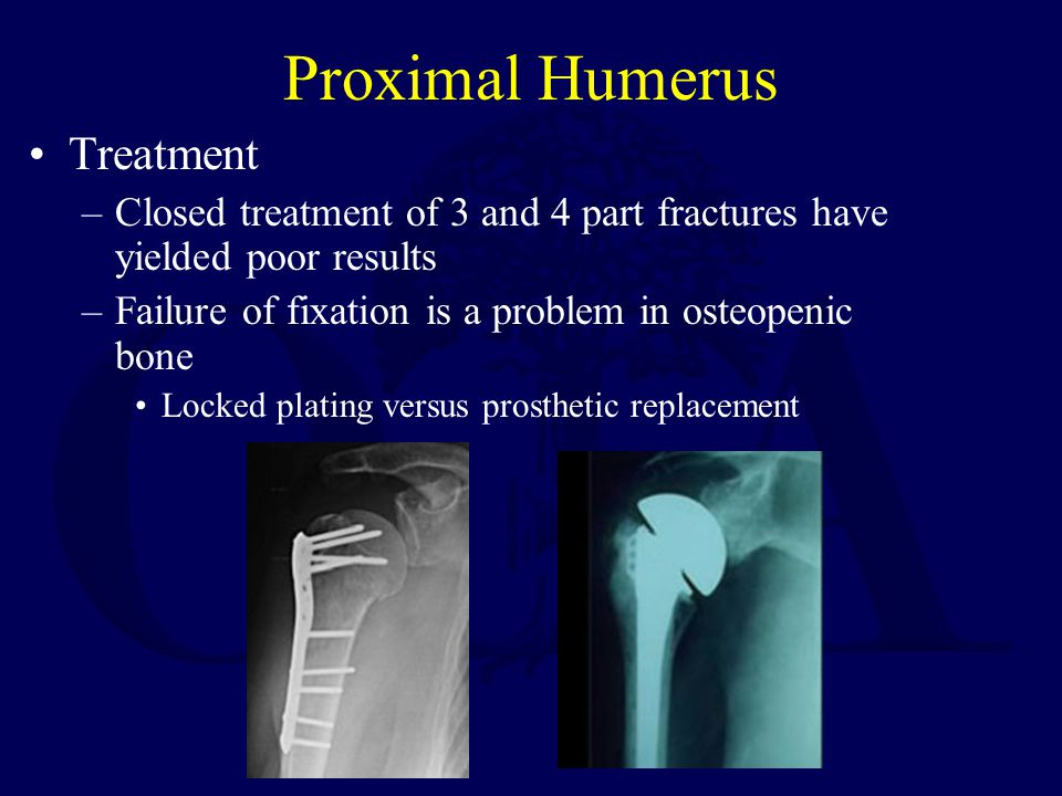 Proximal Humerus Treatment –Closed treatment of 3 and 4 part fractures have yielded poor results –Failure of fixation is a problem in osteopenic bone Locked plating versus prosthetic replacement
