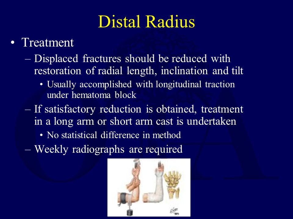 Distal Radius Treatment –Displaced fractures should be reduced with restoration of radial length, inclination and tilt Usually accomplished with longitudinal traction under hematoma block –If satisfactory reduction is obtained, treatment in a long arm or short arm cast is undertaken No statistical difference in method –Weekly radiographs are required