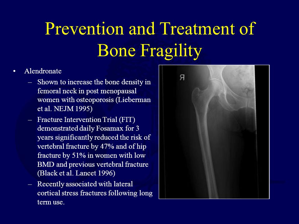 Prevention and Treatment of Bone Fragility Alendronate –Shown to increase the bone density in femoral neck in post menopausal women with osteoporosis (Lieberman et al.