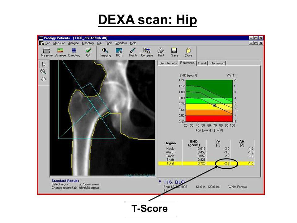 DEXA scan: Hip T-Score