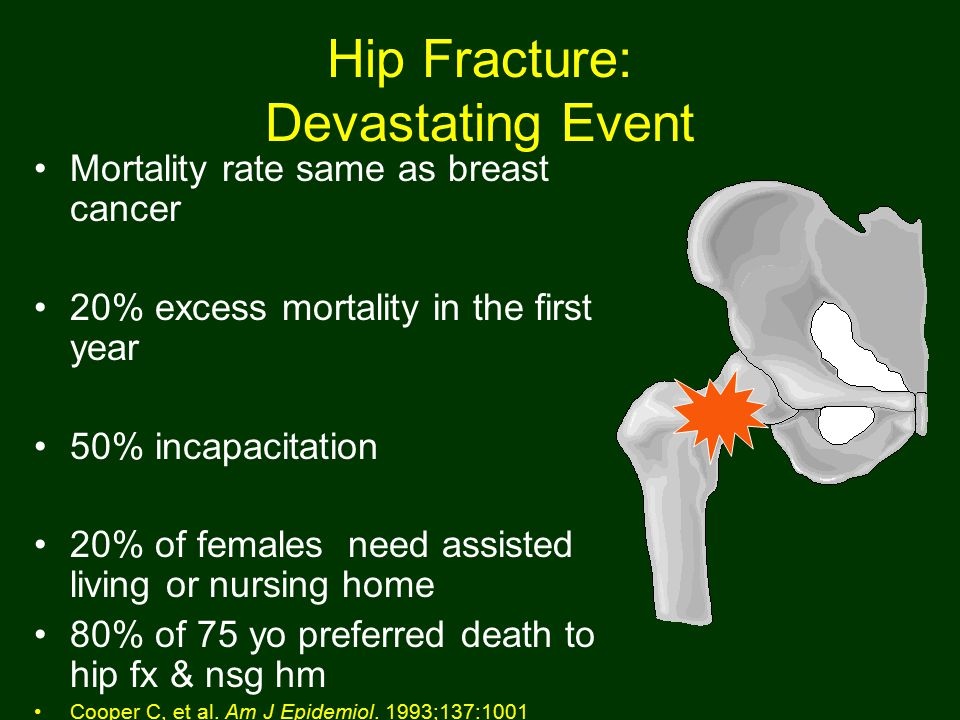 Hip Fracture: Devastating Event Mortality rate same as breast cancer 20% excess mortality in the first year 50% incapacitation 20% of females need assisted living or nursing home 80% of 75 yo preferred death to hip fx & nsg hm Cooper C, et al.