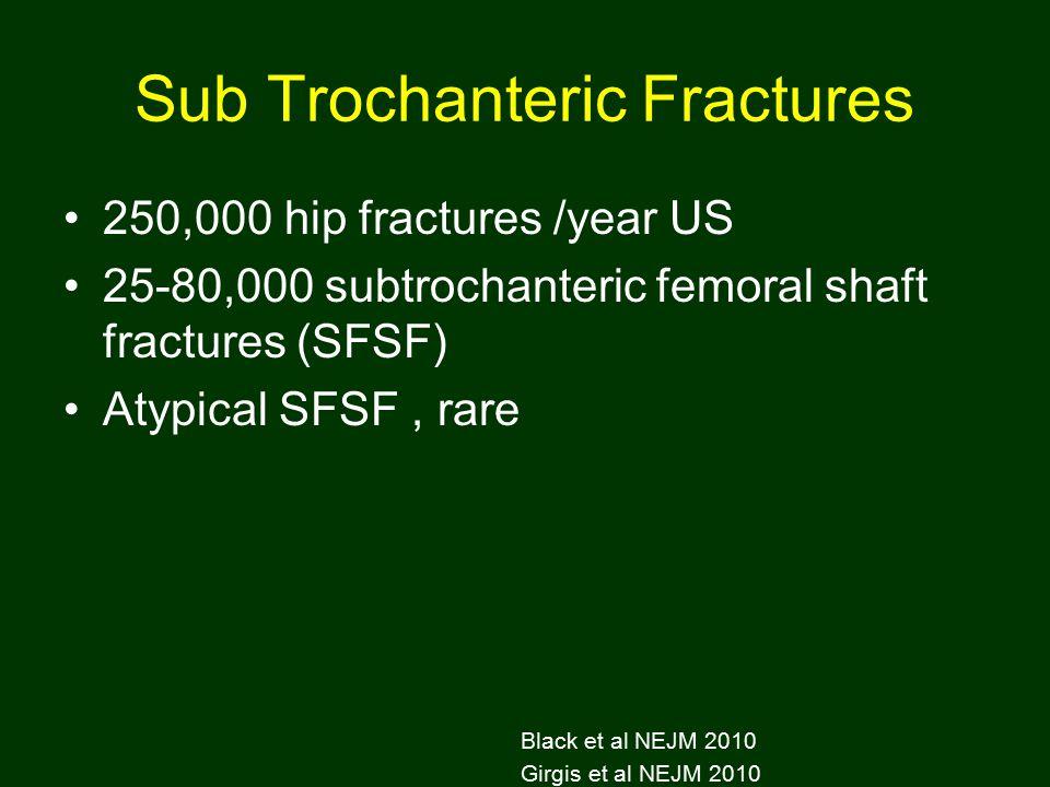 Sub Trochanteric Fractures 250,000 hip fractures /year US 25-80,000 subtrochanteric femoral shaft fractures (SFSF) Atypical SFSF, rare Black et al NEJM 2010 Girgis et al NEJM 2010