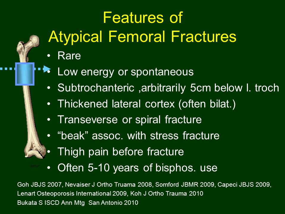 Features of Atypical Femoral Fractures Rare Low energy or spontaneous Subtrochanteric,arbitrarily 5cm below l. troch Thickened lateral cortex (often b