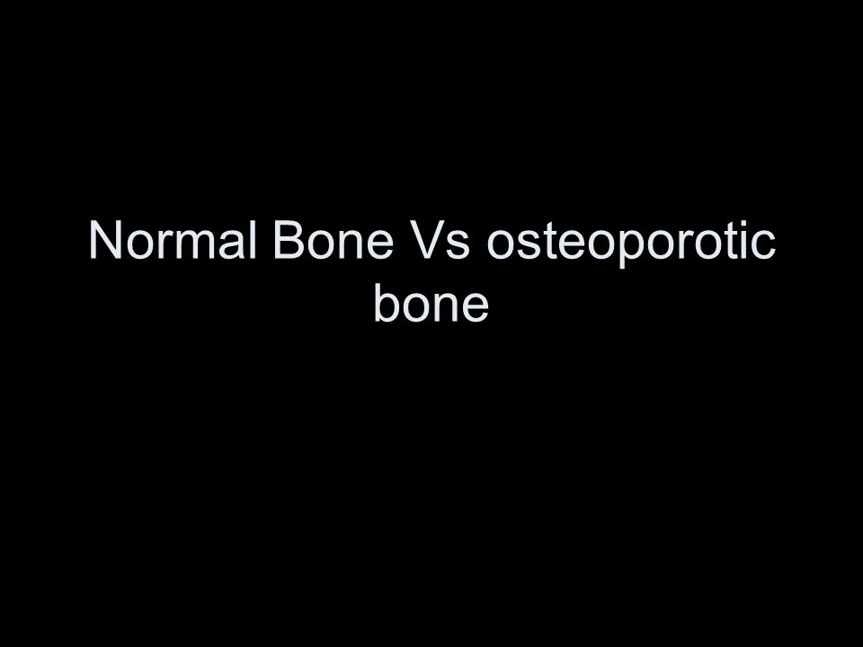 Normal Bone Vs osteoporotic bone
