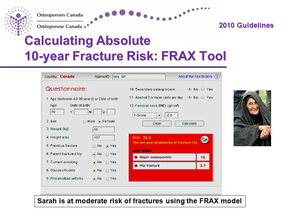 2010 Guidelines Calculating Absolute 10-year Fracture Risk: FRAX Tool Sarah is at moderate risk of fractures using the FRAX model.