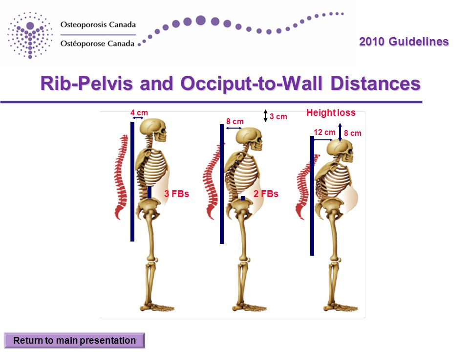 2010 Guidelines Rib-Pelvis and Occiput-to-Wall Distances 4 cm 3 FBs 8 cm 12 cm 2 FBs Height loss 3 cm 8 cm Return to main presentation