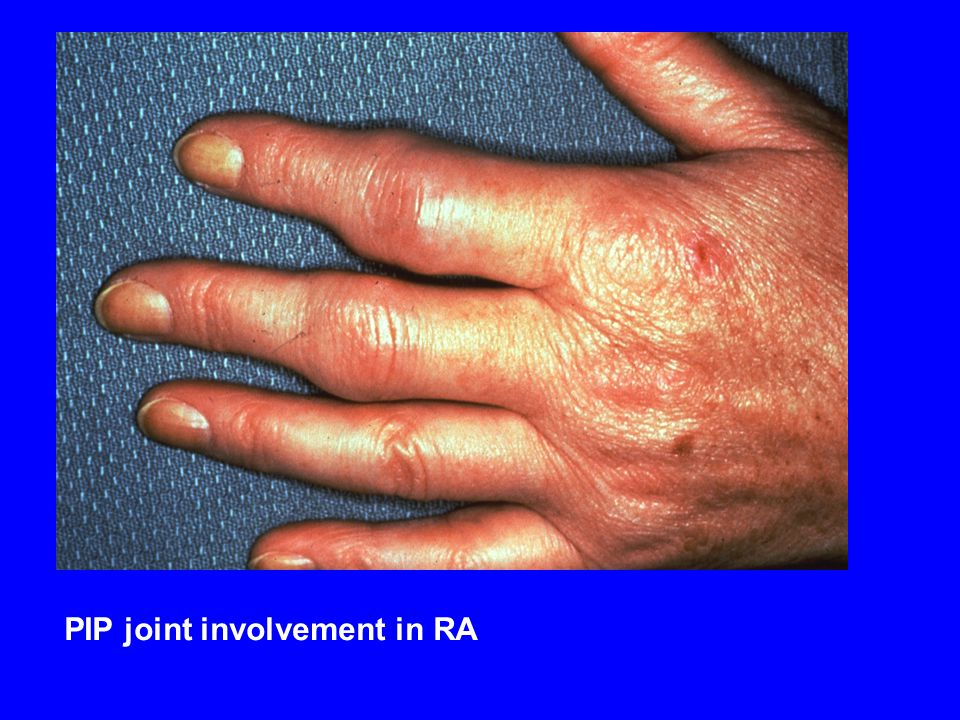 PIP joint involvement in RA