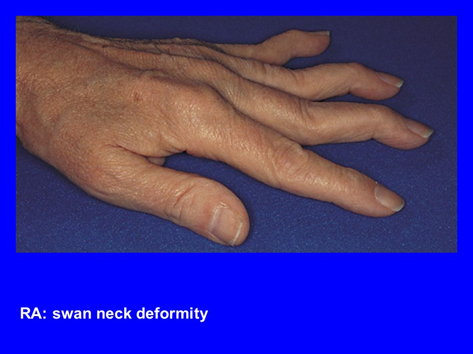 RA: swan neck deformity