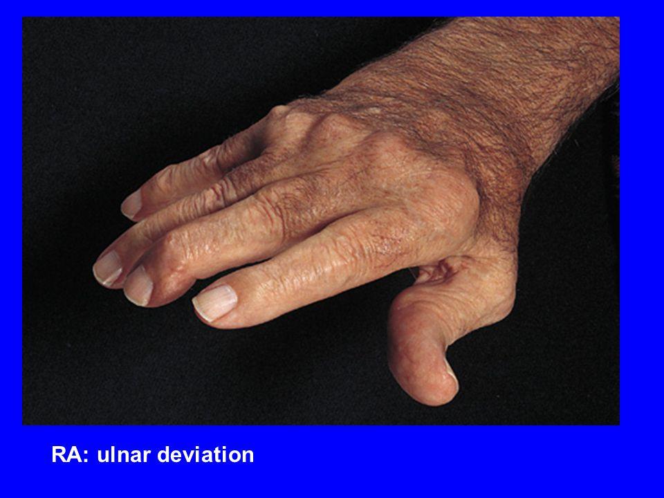 RA: ulnar deviation