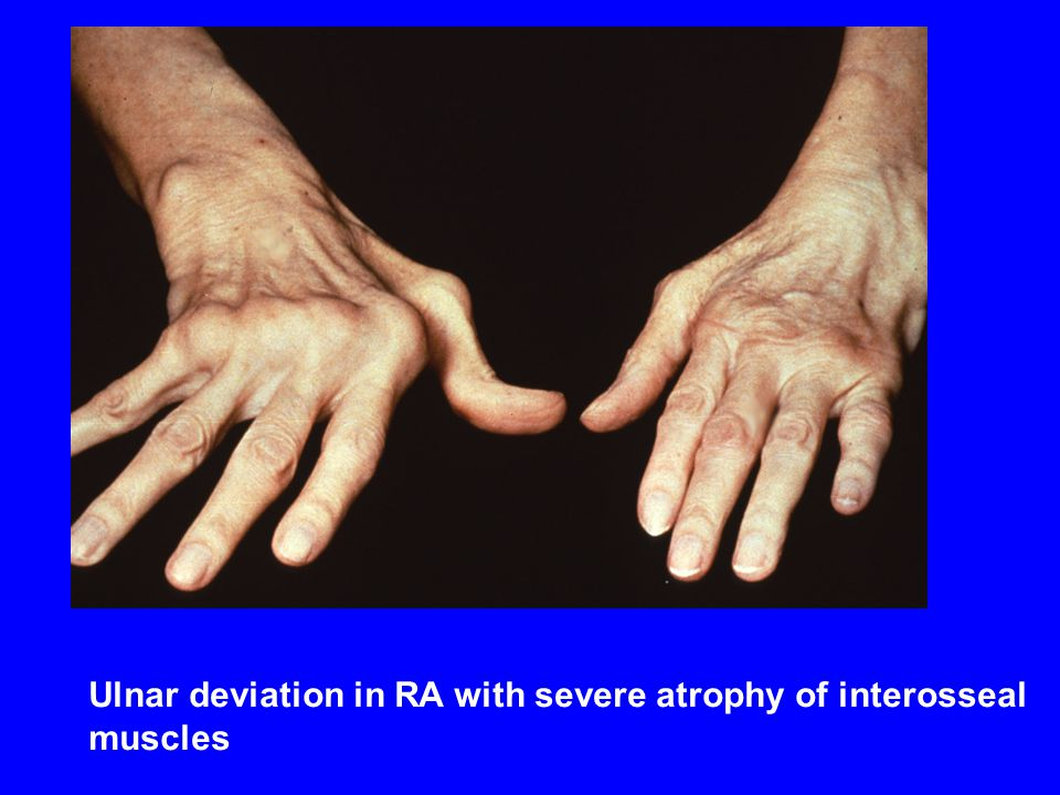 Ulnar deviation in RA with severe atrophy of interosseal muscles Ulnar deviation in RA with severe atrophy of interosseal muscles