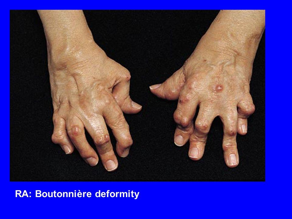 RA: Boutonnière deformity
