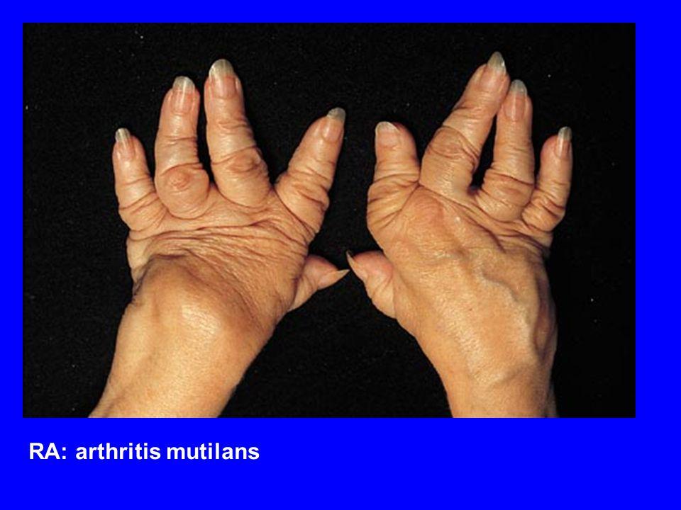 RA: arthritis mutilans