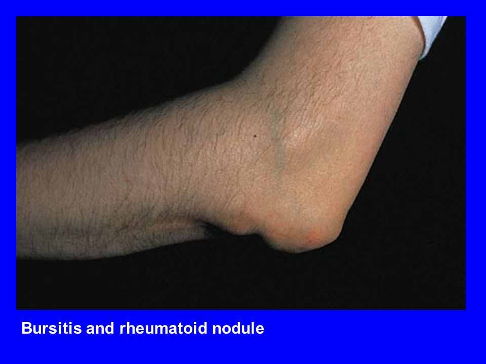 Bursitis and rheumatoid nodule