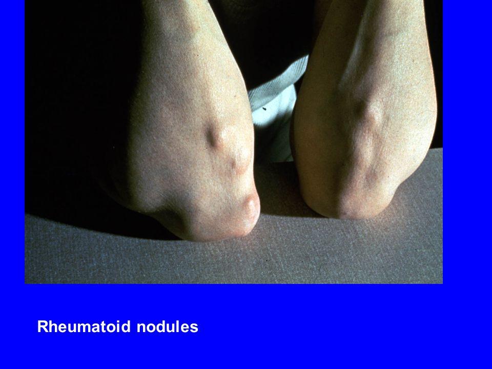Rheumatoid nodules