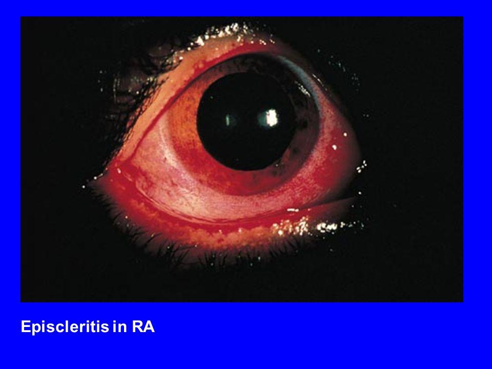 Episcleritis in RA