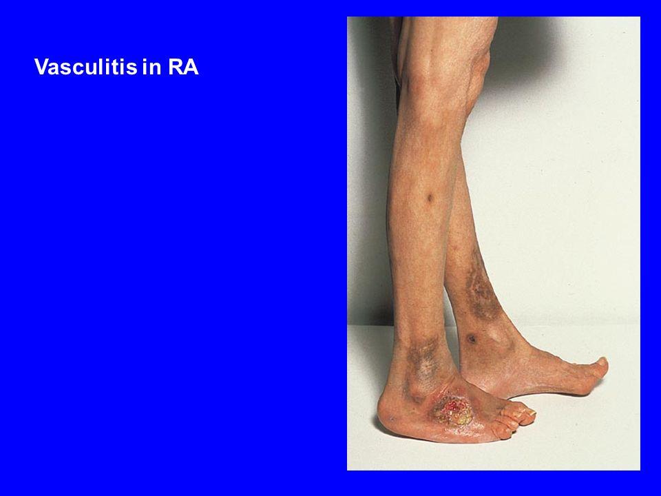 Vasculitis in RA