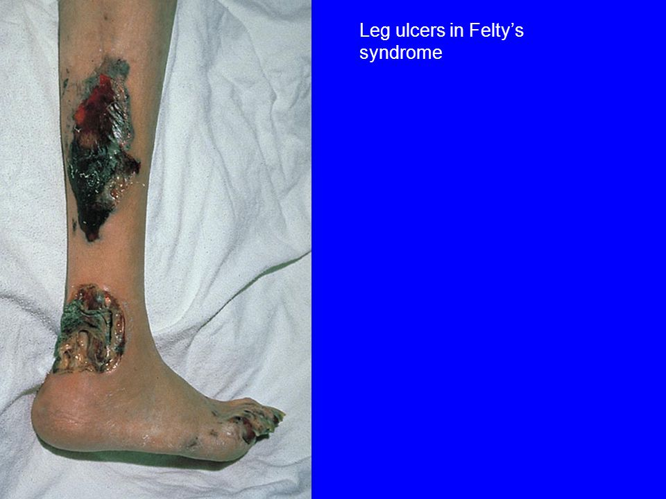 Leg ulcers in Felty's syndrome