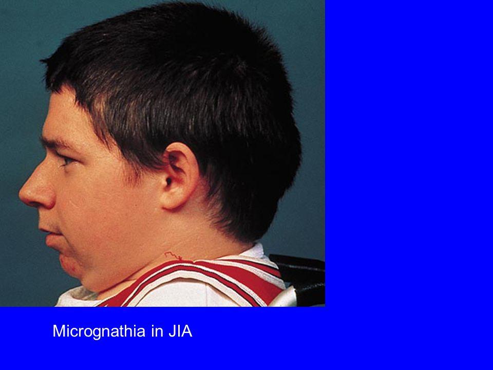 Micrognathia in JIA