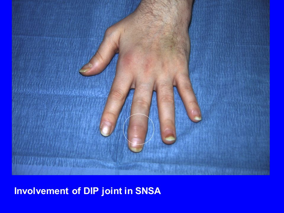 Involvement of DIP joint in SNSA