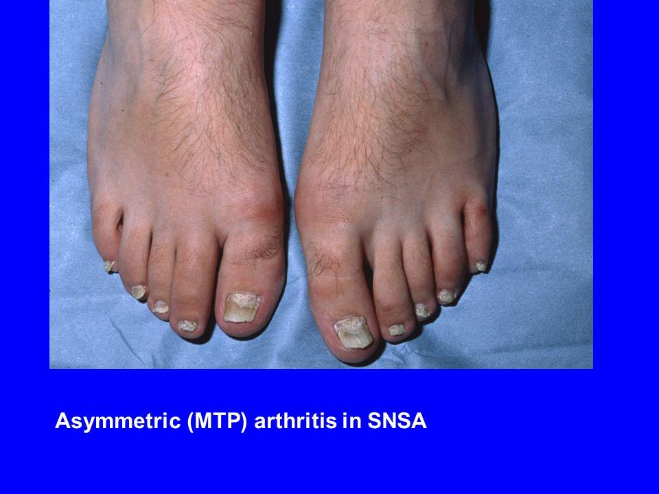 Asymmetric (MTP) arthritis in SNSA