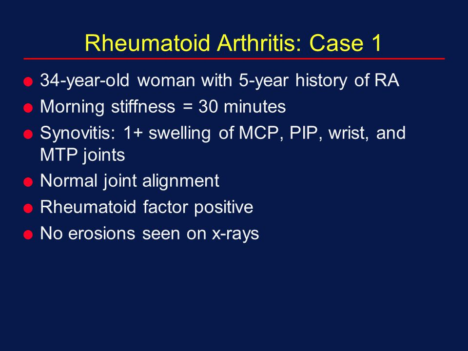 Rheumatoid Arthritis: Case 1  34-year-old woman with 5-year history of RA  Morning stiffness = 30 minutes  Synovitis: 1+ swelling of MCP, PIP, wris
