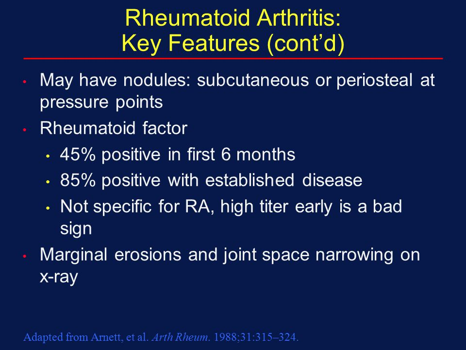 Rheumatoid Arthritis: Key Features (cont'd) May have nodules: subcutaneous or periosteal at pressure points Rheumatoid factor 45% positive in first 6