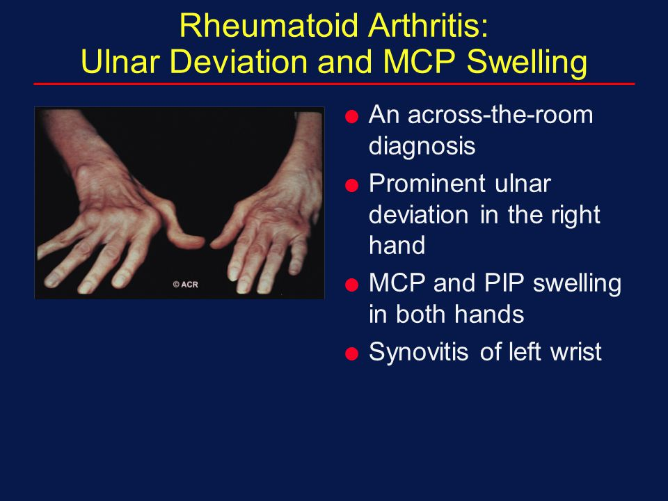Rheumatoid Arthritis: Ulnar Deviation and MCP Swelling  An across-the-room diagnosis  Prominent ulnar deviation in the right hand  MCP and PIP swel
