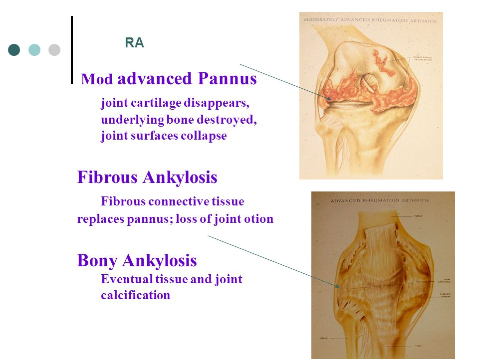 Mod advanced Pannus joint cartilage disappears, underlying bone destroyed, joint surfaces collapse Fibrous Ankylosis Fibrous connective tissue replaces pannus; loss of joint otion Bony Ankylosis Eventual tissue and joint calcification RA