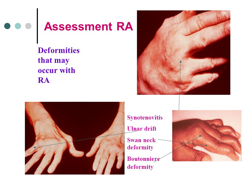 Assessment RA Deformities that may occur with RA Synotenovitis Ulnar drift Swan neck deformity Boutonniere deformity